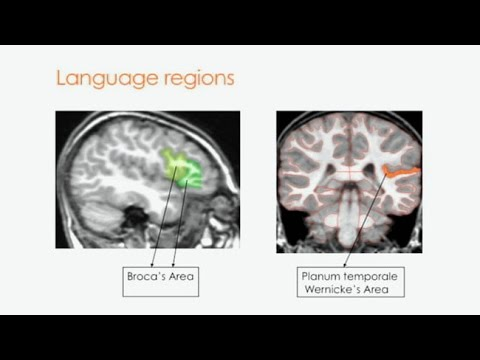On the Origins and Development of Language and Communication in Autism Spectrum Disorder