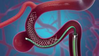 LVIS® Device Animation