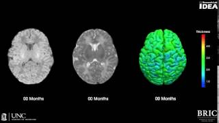 Brain development image progression