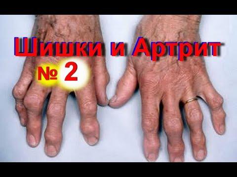 Артрит пальцев рук -
