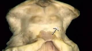 Neuroanatomia Repaso Cerebro, Tallo y Cerebelo