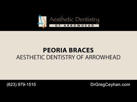 Peoria Braces | Aesthetic Dentistry of Arrowhead