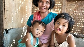 Discovering the Causes of Cleft