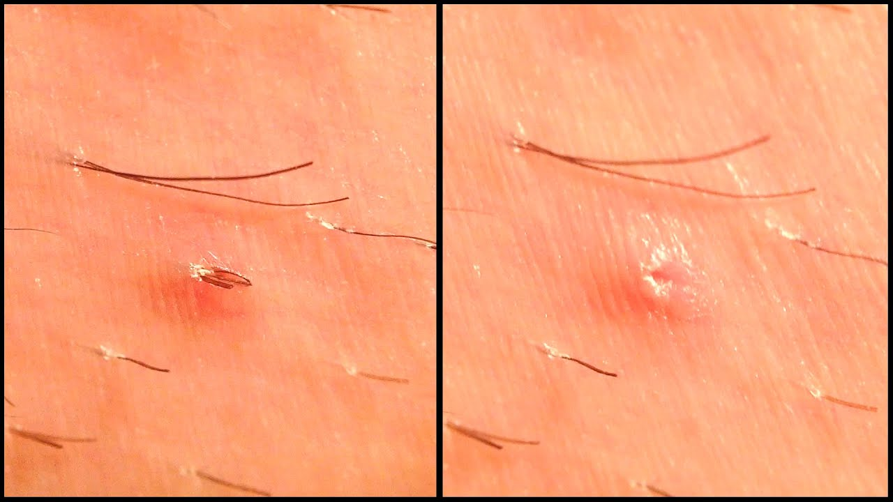 3 Ingrown Hairs Removal From One Follicle
