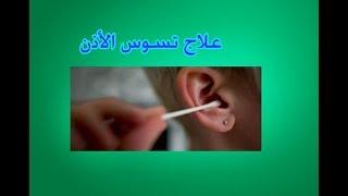 علاج تسوس الأذن بالطب البديل