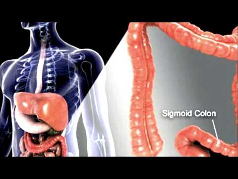 Cleanse your Colon Naturally at Home simply