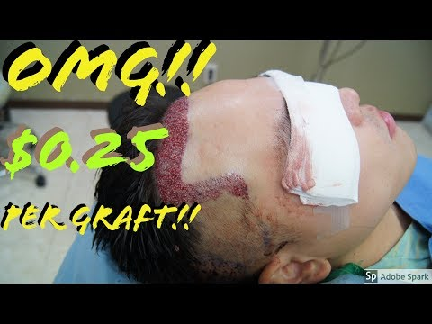 CHEAPEST Hair Transplant in the WORLD!