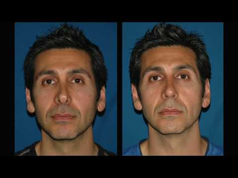 Revision Rhinoplasty Surgery by Beverly Hills Board Certified Cosmetic Plastic Surgeon, Dr. Keyes