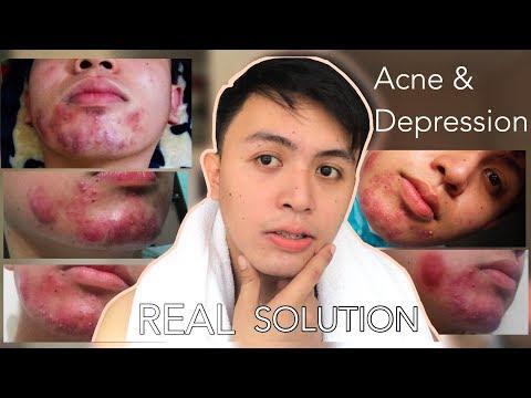 ANG TOTOONG SOLUSYON! Paano Nawala ang Pimples Ko STOP ACNE NOW