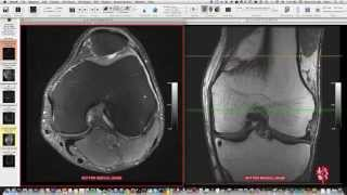 Systematic Interpretation of Knee MRI: How I do it