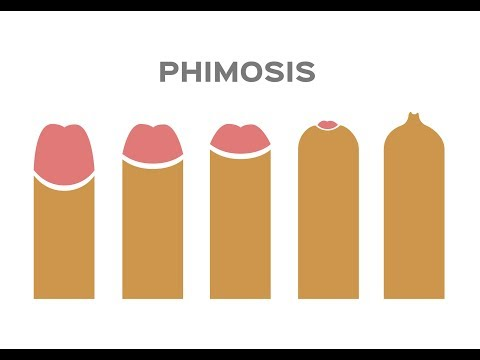 Phimosis Rings And Foreskin Stretching
