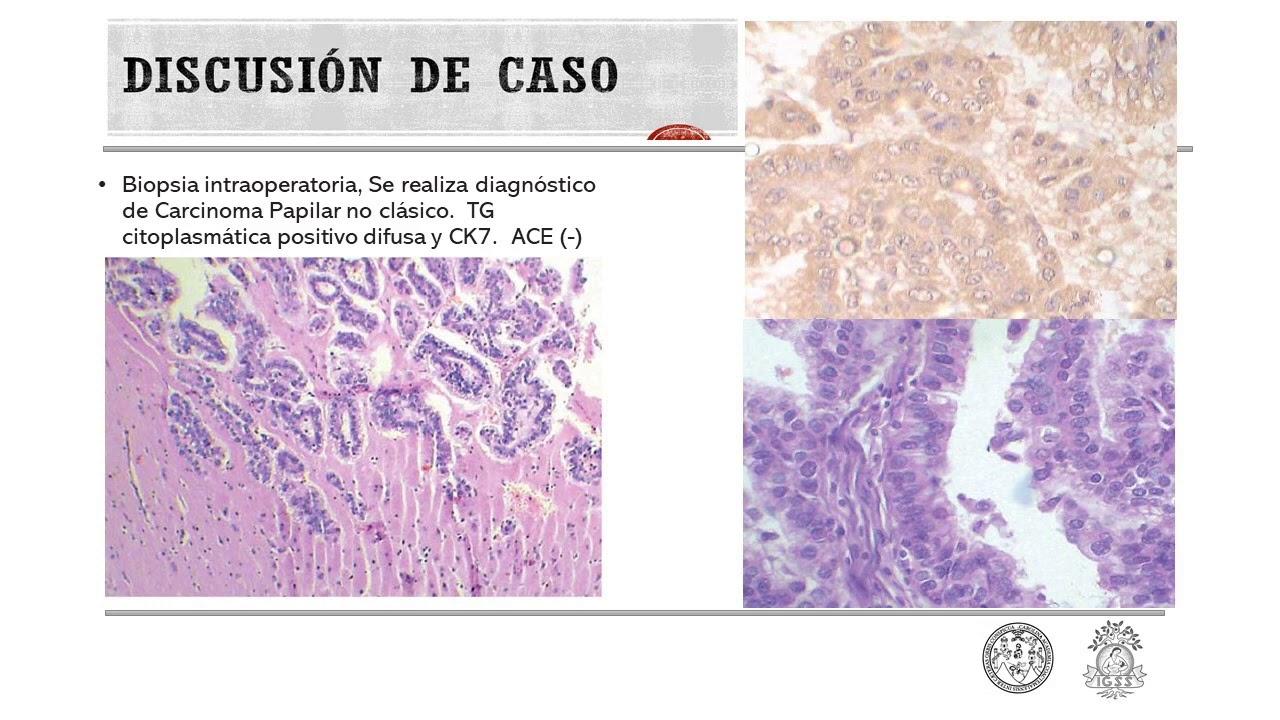 Caso interesante: Cáncer de tiroides con metástasis cerebral. Dr. Hugo Castro