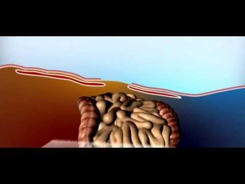 Может ли болеть желудок от поднятия тяжестей