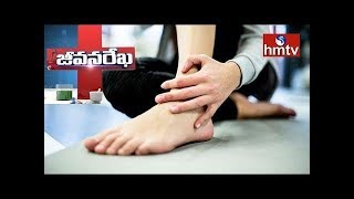 Solution For Arthritis Problems | Homeocare International | Jeevana Rekha | Health News | hmtv
