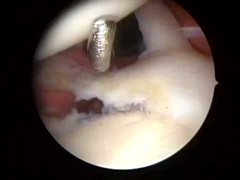Slap tear type 2 and 3 Surgery