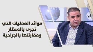 د. أشرف أبو خيط - فوائد العمليات التي تجرى بالمنظار ومقارنتها بالجراحية