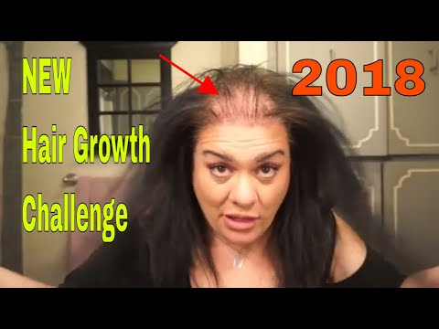 2018 Hair Growth Challenge LETS DO THIS