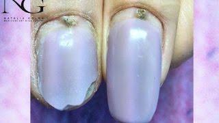 Питання/відповідь:хвороби, травми нігтя в зоні кутикули / Illness injury and near cuticle