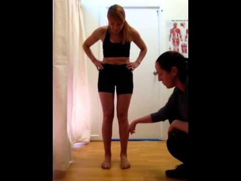 Posture Assessment - Anterior View