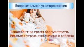 видео Ангіна при вагітності