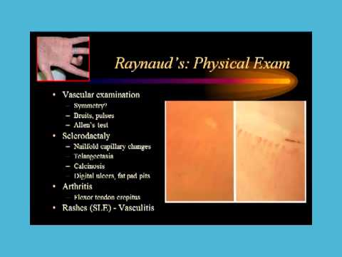 Dr. Robert Valente: Cold fingers and Raynaud's  Phenomenon
