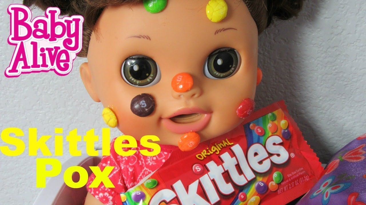 Baby Alive Skittles Pox Real Surprises Doll Kara Gets