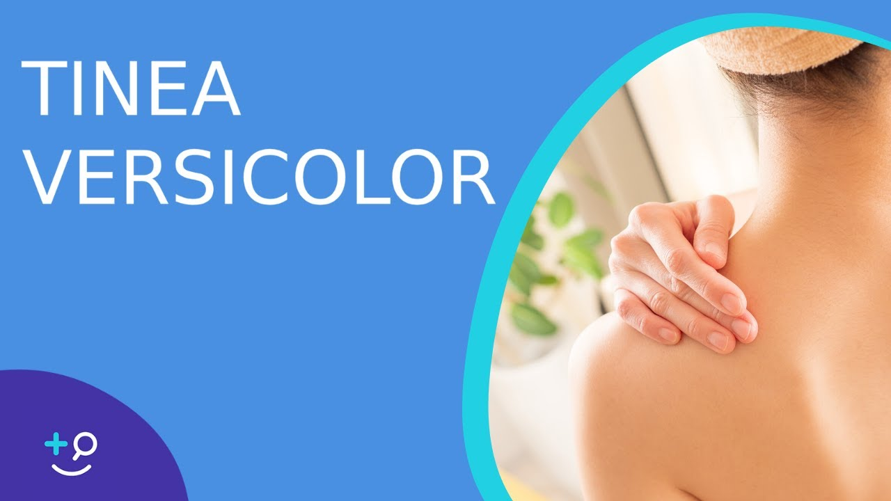Tinea Versicolor - American Osteopathic College of