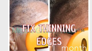 MIRACLE GROWTH WATER™️ GROWING HAIR BACK FAST & STOPPING HAIR LOSS
