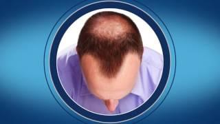 La calvitie masculine, ses causes et son traitement (alopécie androgénétique) | ROGAINE® pour hommes