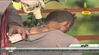 Download Video تطبيق عملي لعملية الحجامة - الشيخ د.محمد آل نصر MP3 3GP MP4