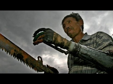 Awesome Chinese Man Builds Bionic Arms After Blowing Off ...