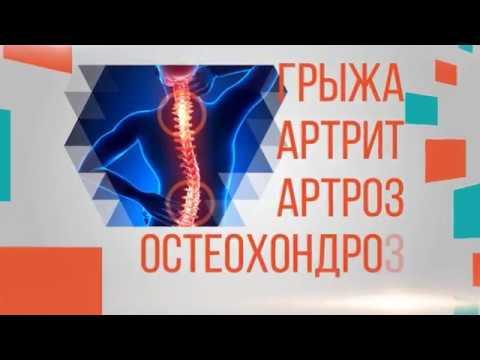 Медицинский центр суставы ортит коленного сустава