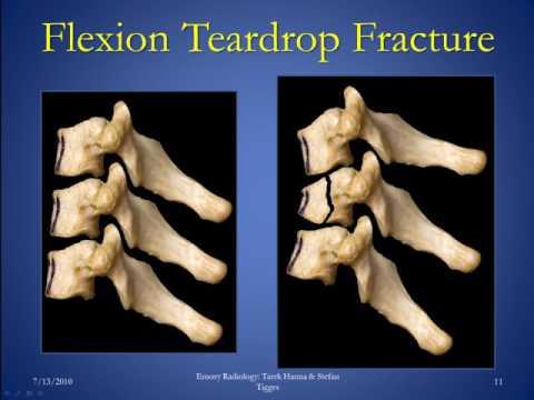 Cervical Spine Fractures Version 1 0