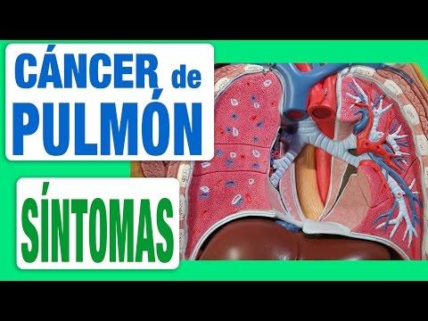 Cáncer de Pulmón - Síntomas
