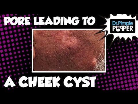 A Pore Leading Into A Cheek Cyst