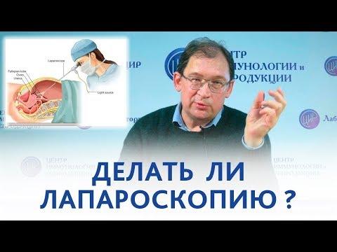 Лапароскопия. Делать ли лапароскопию, если 7 лет назад была непроходимость труб?