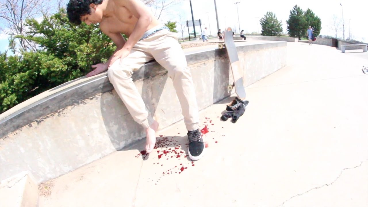 SKATER BREAKS AND OPENS HIS FOOT *BLOOD ALERT*