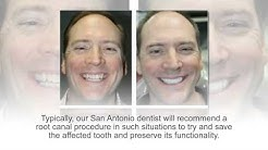 Root Canal Procedures at Cosmetic Dental Associates San Antonio, TX Dental Office
