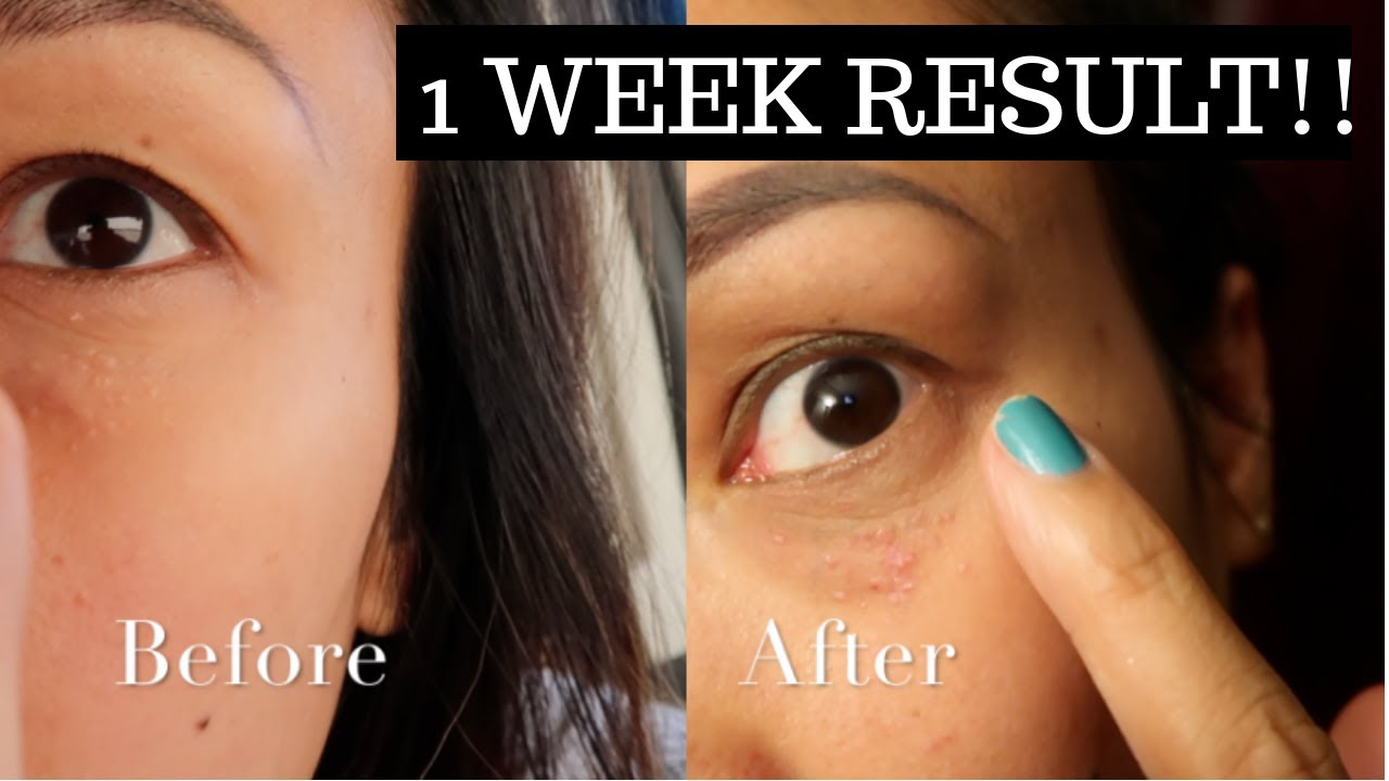 Treatment milia under eyes home What Are