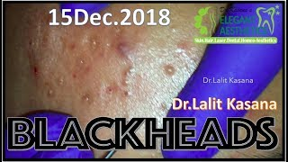 BLACKHEAD REMOVAL 15 Dec. 2018 by Dr.Lalit Kasana