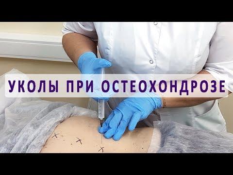 Виды уколов при остеохондрозе