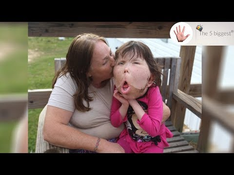 The most mysterious genetic condition! Story of beautiful Katie ~ Body Bizarre