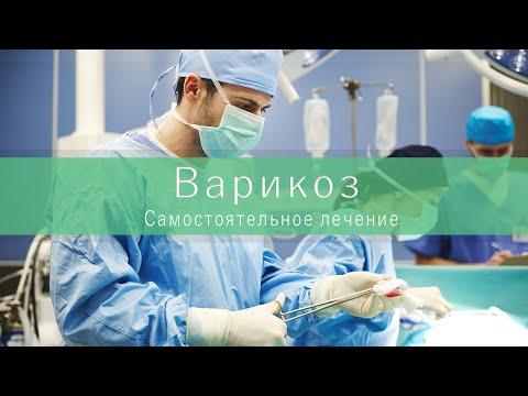 Самостоятельное лечение варикоза