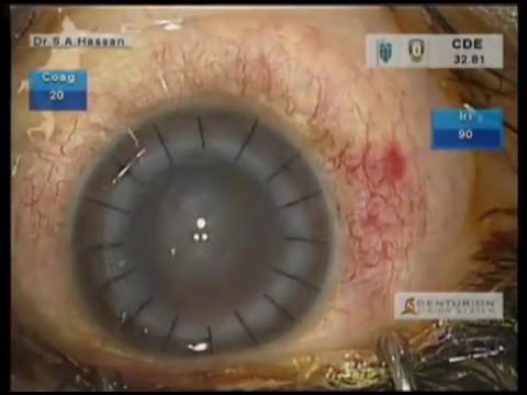 Keratoplasty (DALK) with WaveLight® FS200 Femtosecond Laser