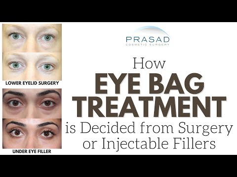 Eye Bags - How a Doctor Experienced with Surgery and Under E
