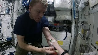 Tim Peake: how to draw blood in space