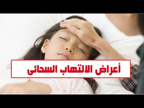 فيديو معلوماتى.. أعراض الالتهاب السحائى وطرق الوقاية منه  - 08:58-2019 / 11 / 11