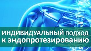 🌟 Эндопротезирование сустава. Штучный подход к эндопротезированию суставов. ЦЭЛТ.(, 2017-02-12T13:18:32.000Z)
