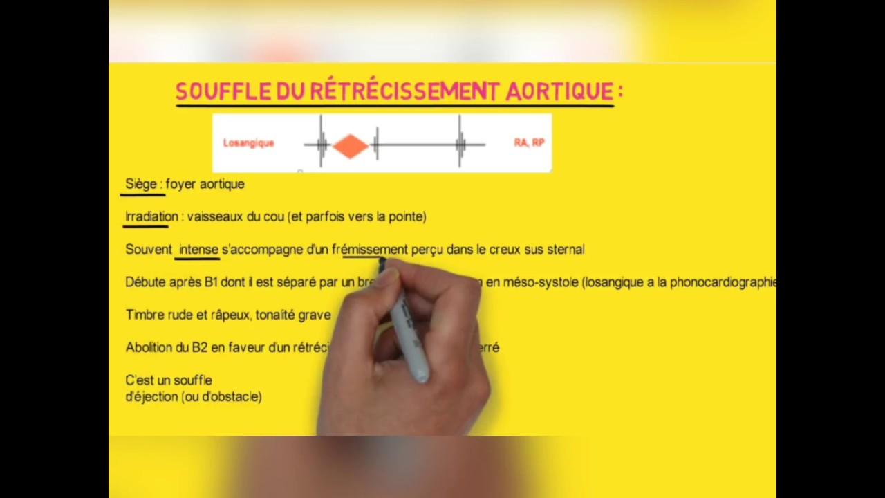 les souffles systoliques _ le souffle du rétrécissement aortique _ ( infos  à retenir + audio)