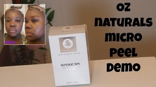 Oz Naturals Micro Peel First Impressions/Demo|MissRessaT